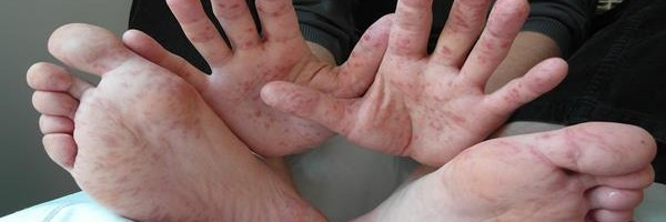 Hand_Foot_Mouth_Disease_Adult_36Years (Copy)